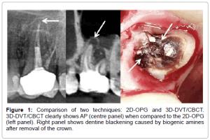 Soldaki ve sağdaki görüntüler aynı dişe ait. Soldaki röntgen görüntüsü dişin sorunsuz olduğunu düşündürebilir. Oysa sağdaki tomografide kökün ucundaki iltihaplı alanı rahatlıkla görebiliyoruz.