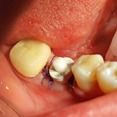 Diş çekimi sonrası yerleştirilen implant ve diş eti şekillendiricisi...